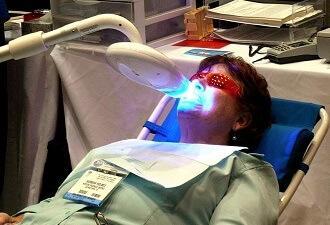 Blanqueamiento de dientes en clinica